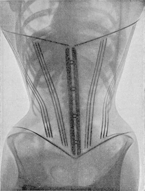 corset22221