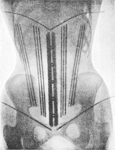 corset311111