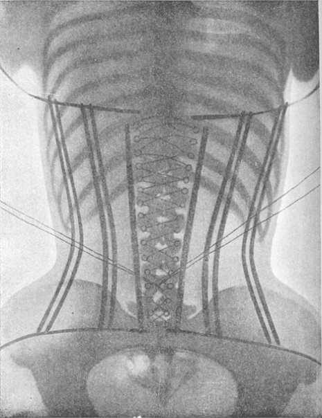 corset44441